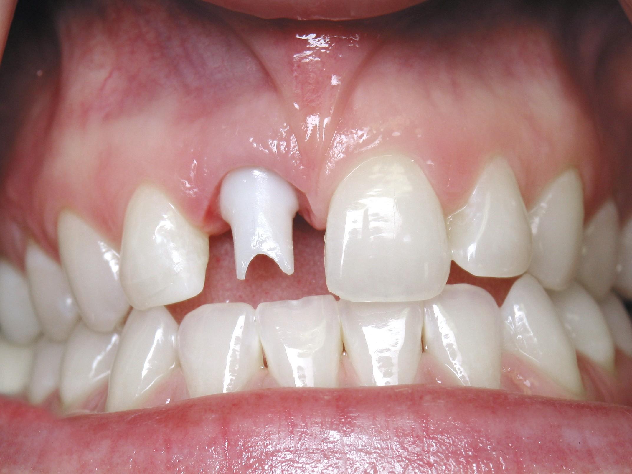 Dental Implant Patient in Scottsdale AZ 03