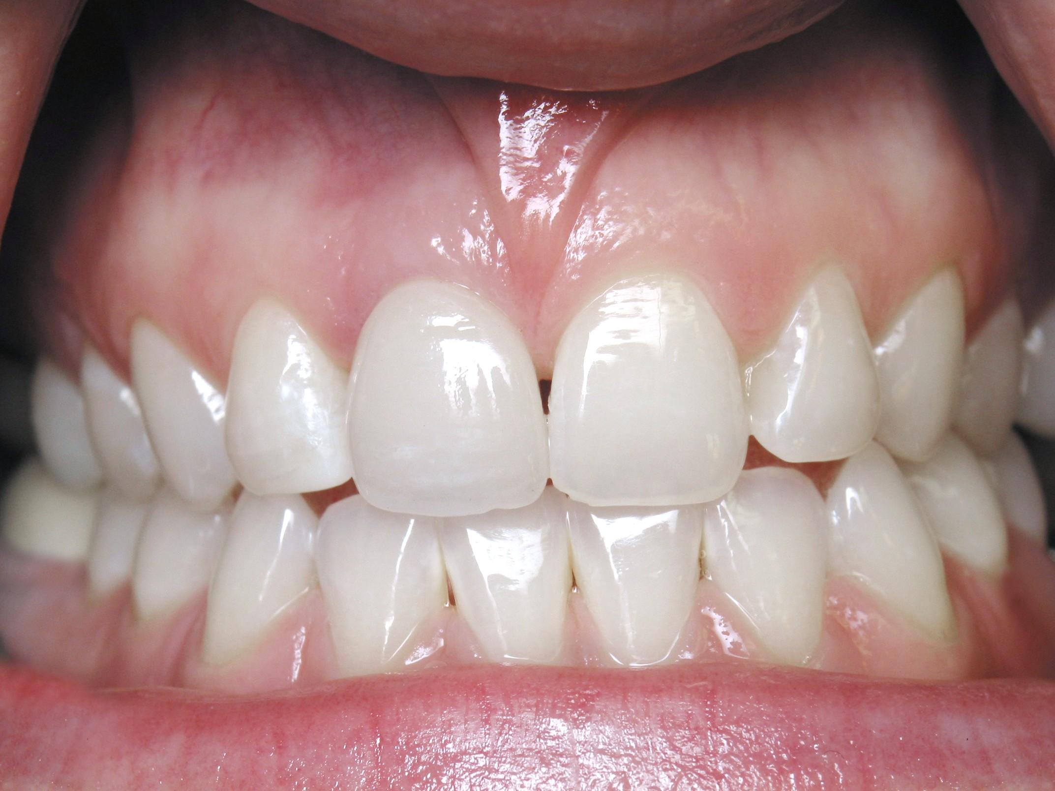 Dental Implant Patient in Scottsdale AZ 04