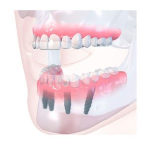 All-on-4-Dental-Implant-After