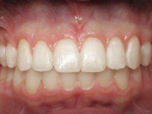 Esthetic-Crown-Lengthening-case-1-after