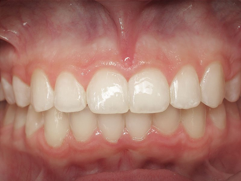 Esthetic-Crown-Lengthening-case-1-before