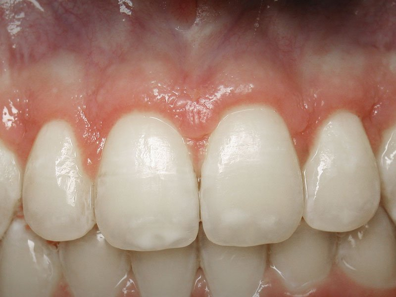 Esthetic-Crown-Lengthening-case-2-after