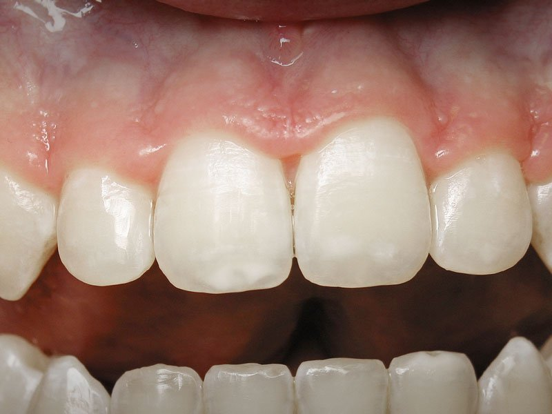 Esthetic-Crown-Lengthening-case-2-before