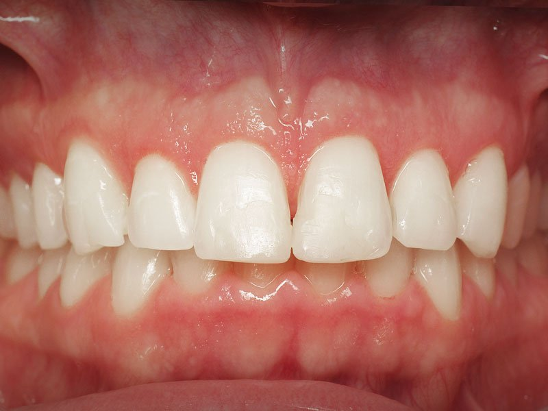Esthetic-Crown-Lengthening-case-3-after