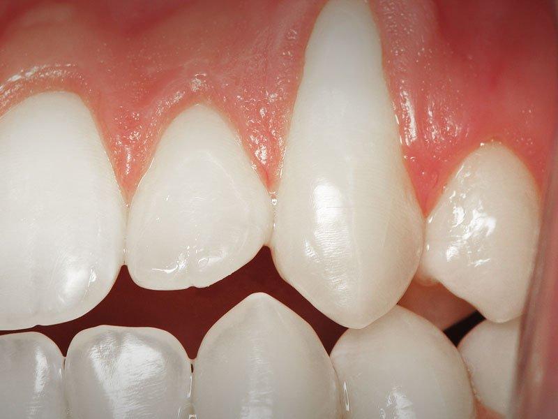 Esthetic Gum Grafting