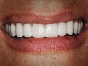 Surgical Treatments - Restorative Crown Lengthening - After