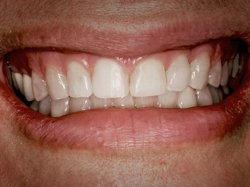 Surgical Treatments - Restorative Crown Lengthening - Before