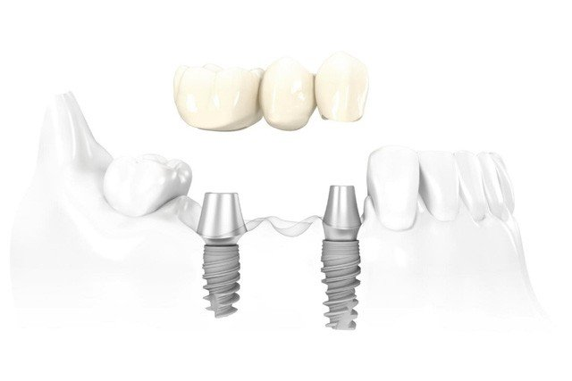 Multi Tooth Dental Implants